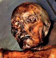 frozen mummies
